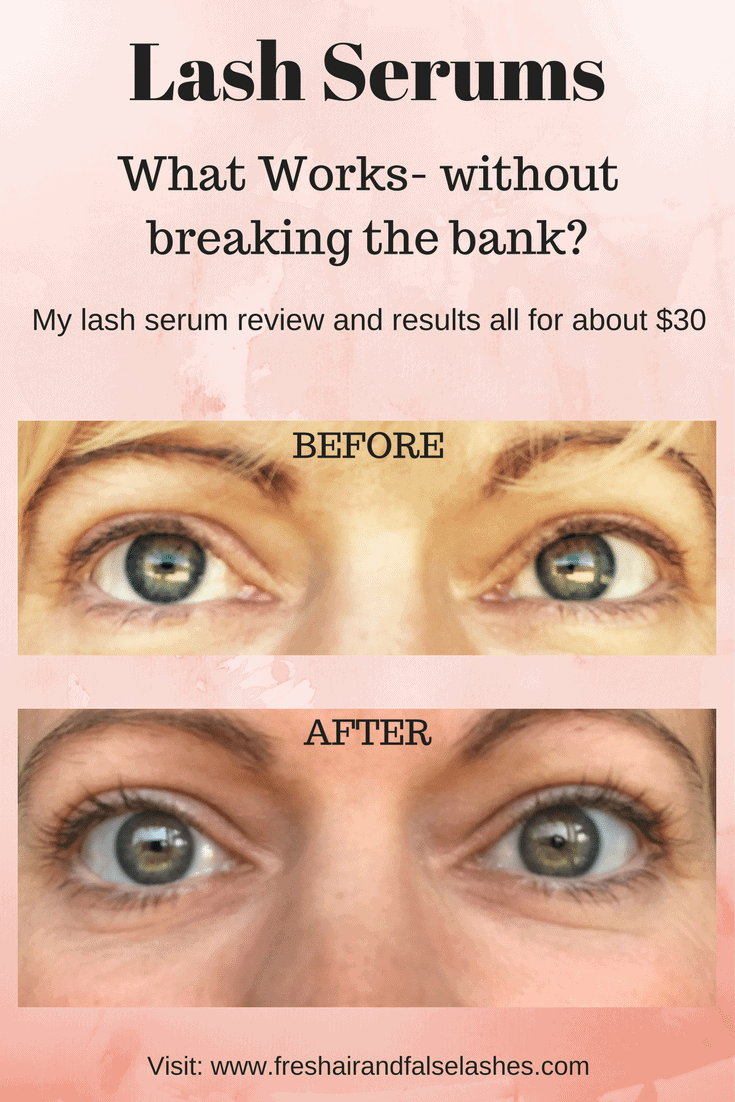 Lash Serums. What works?